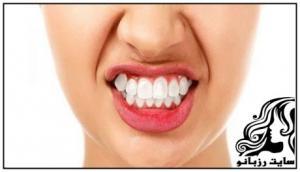 عوامل و علل دندان قروچه