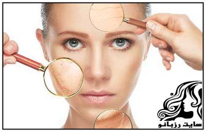 6 سمی که تخریب کننده پوست هستند