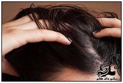 اشتباهاتی که باعث چرب شدن موهای شما می شود
