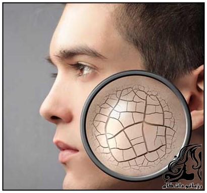 درمان رفع خشکی پوست با طب سنتی