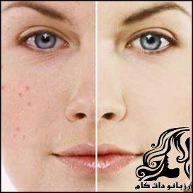 پوشاندن لک های روی پوست بوسیله آرایش