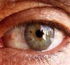 تزریق آواستین توسط فوق تخصص شبکیه چشم