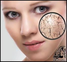 نکاتی کاربردی برای مرافبت از پوست خشک