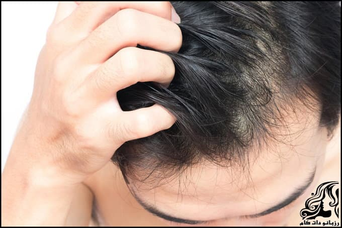 https://up.rozbano.com/view/3038499/Dandruff%20and%20itching%20of%20the%20head.jpg