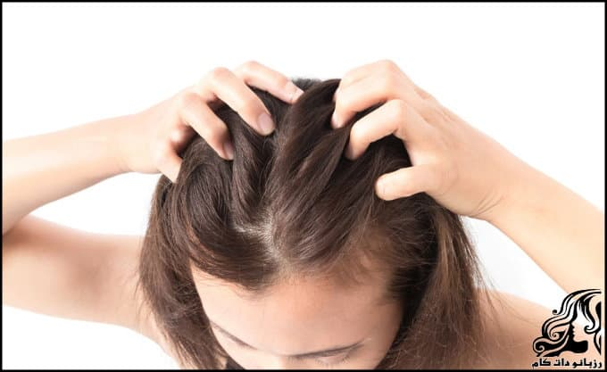 https://up.rozbano.com/view/3038500/Dandruff%20and%20itching%20of%20the%20head-01.jpg