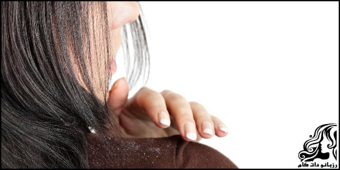 https://up.rozbano.com/view/3038502/Dandruff%20and%20itching%20of%20the%20head-03.jpg