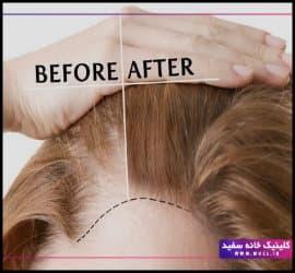 کاشت مو به روش FIT چگونه انجام می شود؟