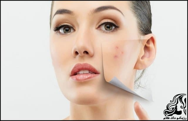 https://up.rozbano.com/view/3318515/Making%20a%20homemade%20anti-acne%20mask.jpg