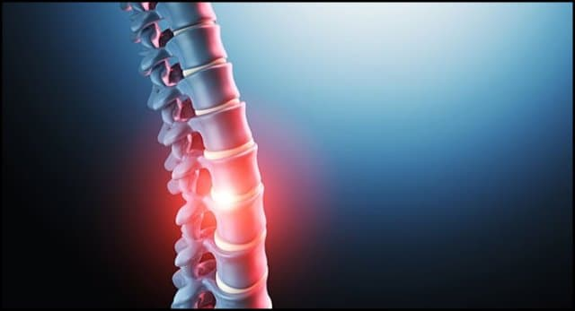 https://up.rozbano.com/view/3361377/Cause%20of%20low%20back%20pain%20and%20ways%20of%20treatment-01.jpg