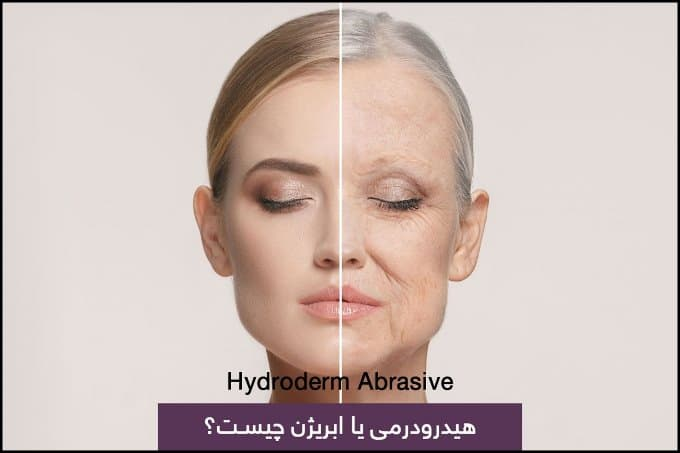 https://up.rozbano.com/view/3370132/Hydrodermabrasion%20or%20hydrodermabrasion%20of%20hair%20and%20skin.jpg